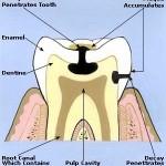 תרופות סבתא לכאבי שיניים
