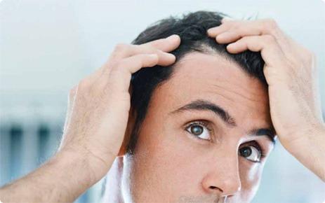 תרופות סבתא לנשירת שיער