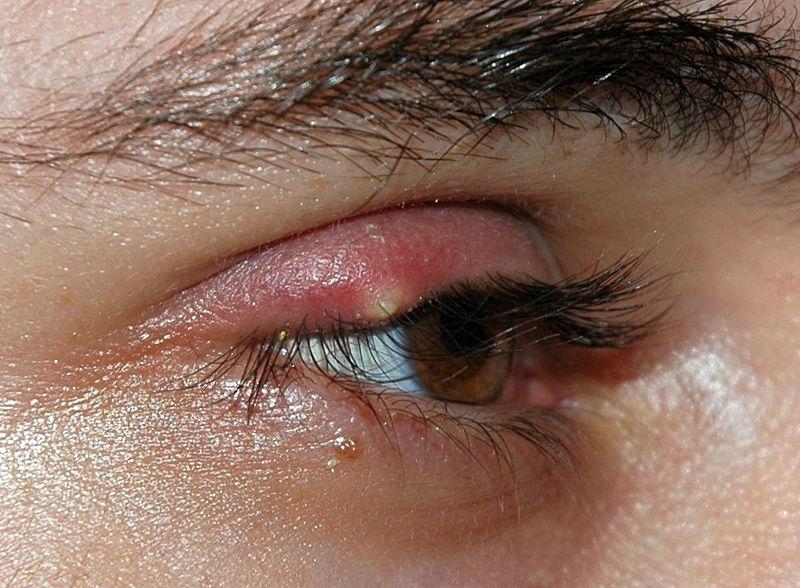 שעורה בעין