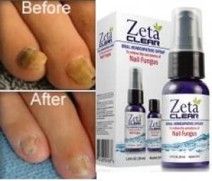 before-after-zetaclear